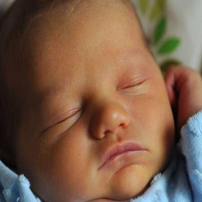 bebeklerde-sarilik-neden-olur