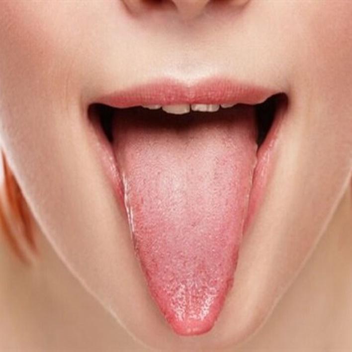 dildeki-siyahlasma-neden-olur