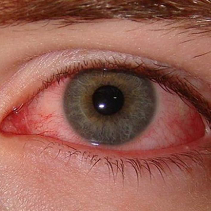 kirmizi-goz-hastaligi-tedavisi-nedir