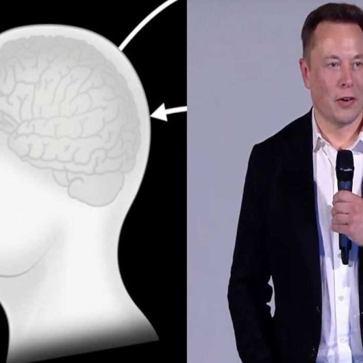 neuralink-ne-zaman-satilacak