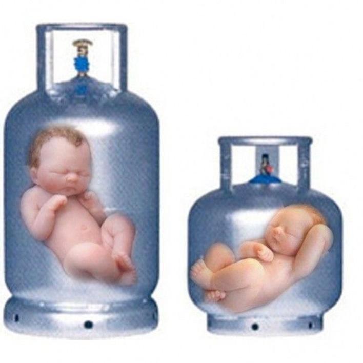 tup-bebek-tedavisinde-dogru-bilinen-yanlislar-neler